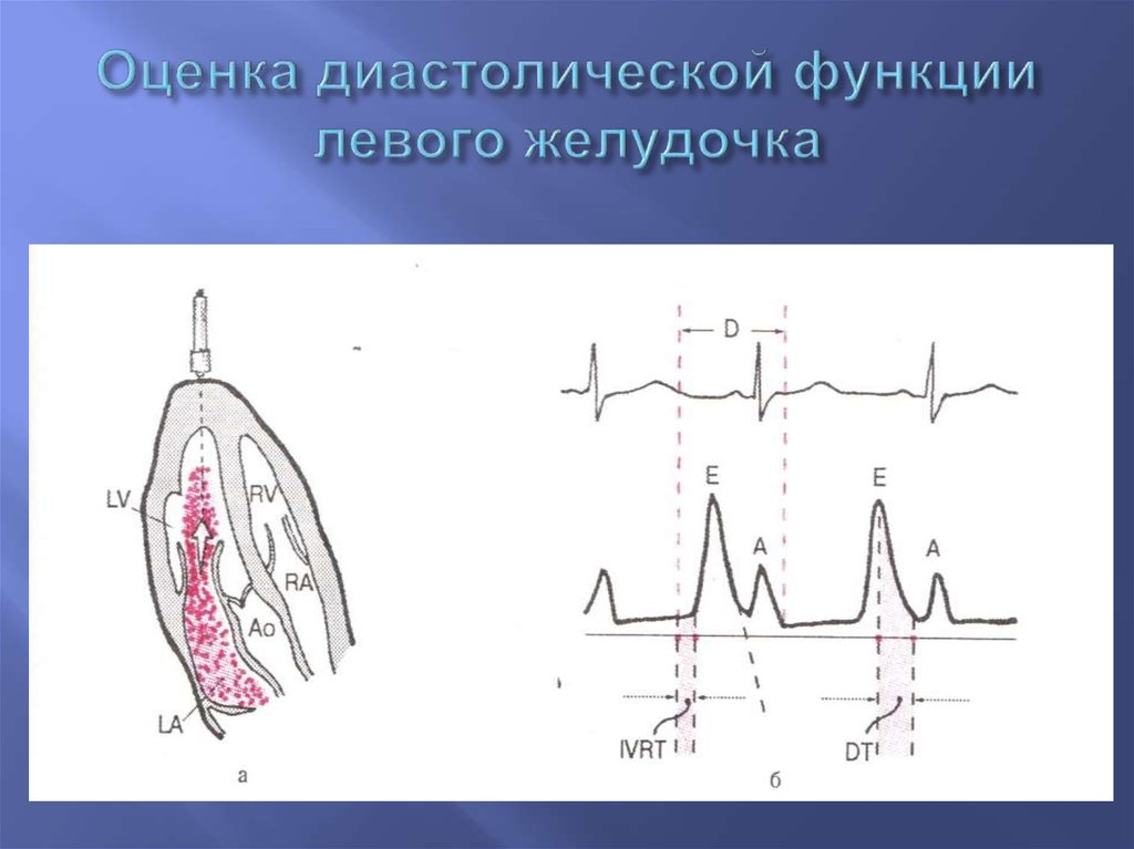 Причины дисфункции левого желудочка сердца. дисфункция желудочков сердца: диастолическая, систолическая