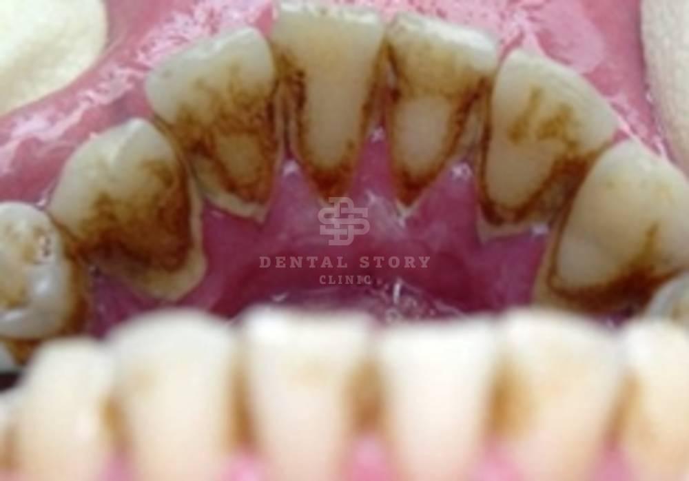 Зубной камень: опасность, причины появления и технологии чистки