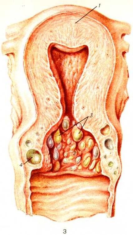 Симптомы и лечение хронического метроэндометрита