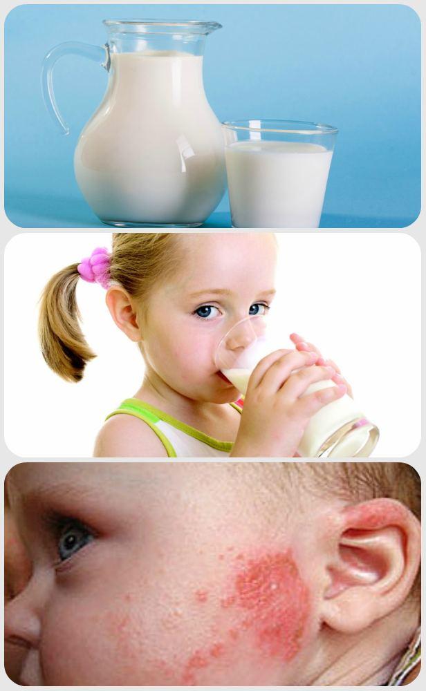 Диатез у детей — симптомы и лечение