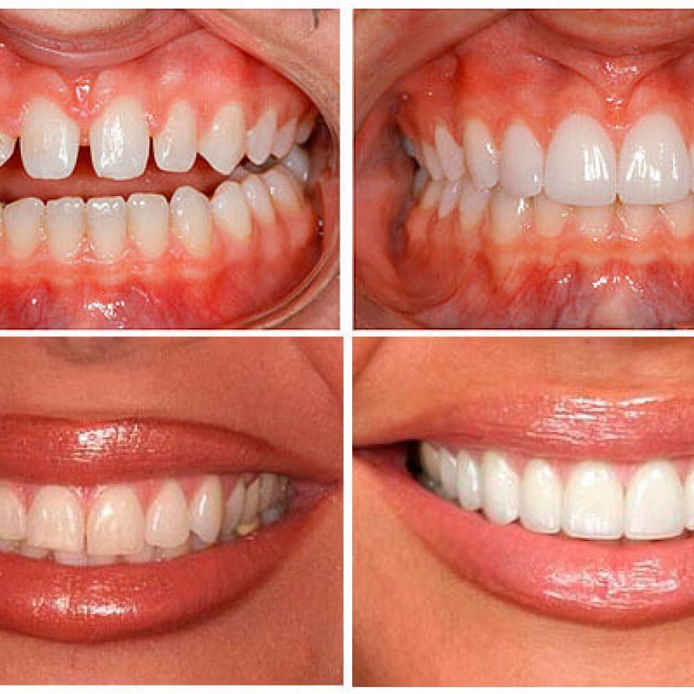 Керамические виниры на зубы: отзывы, фото