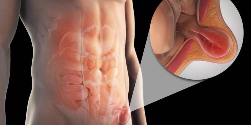 Паховая грыжа у мужчин: симптомы, лечение, причины и последствия