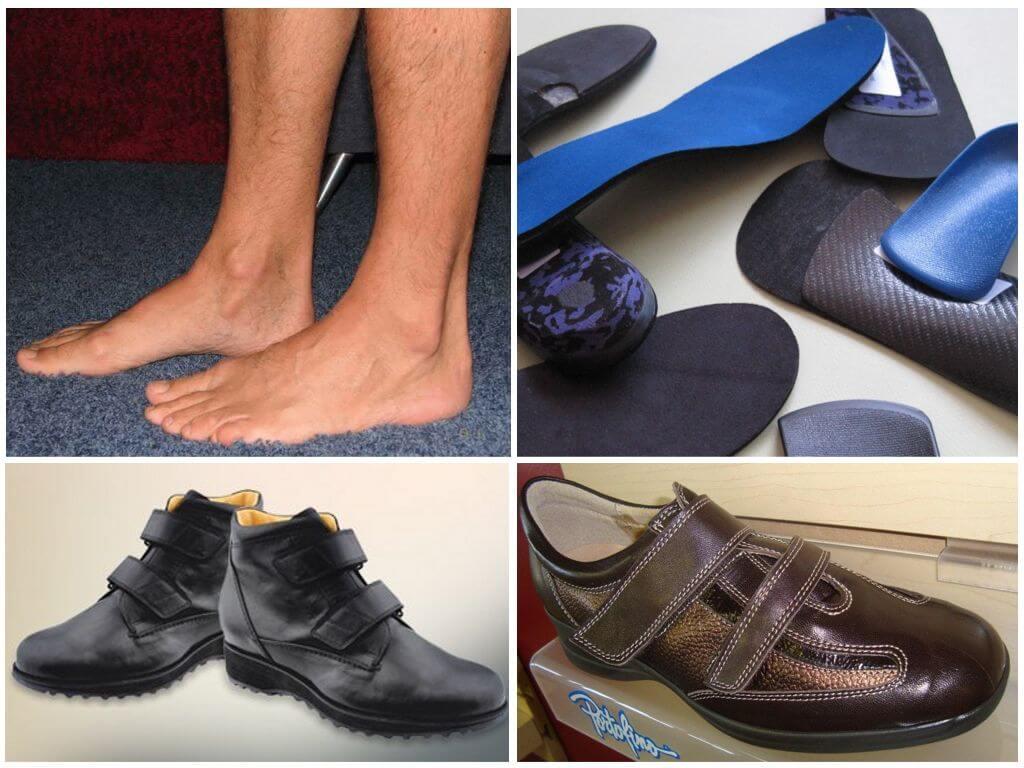 Супинатор в обуви, что это такое, для чего это необходимо