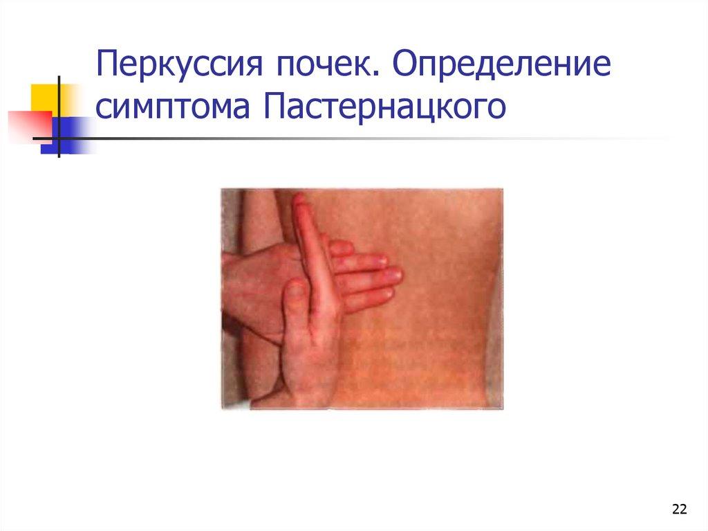 Симптом пастернацкого — методика диагностирования органов мочевыделительной системы. что такое симптом пастернацкого: особенности и нюансы методики проведение симптома пастернацкого - о сендромах