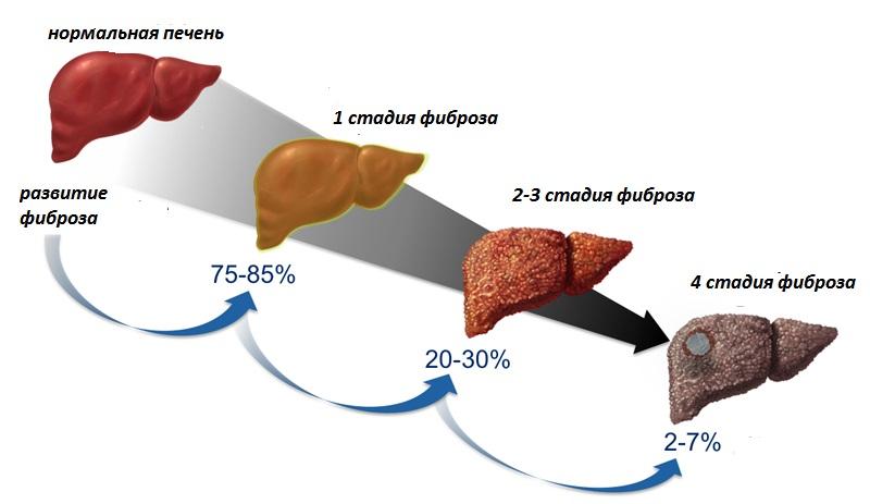 Всё о циррозе печени: причины, симптомы, возможность лечения и прогноз продолжительности жизни