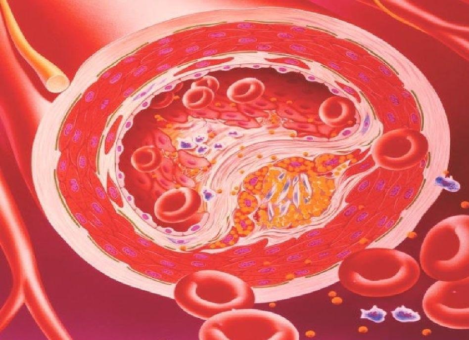 Атеросклероз сердца: что это такое, симптомы и лечение