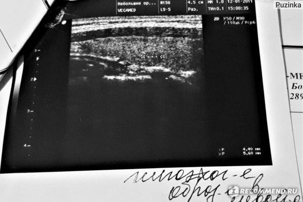 Подготовка к сцинтиграфии щитовидной железы - про щитовидку