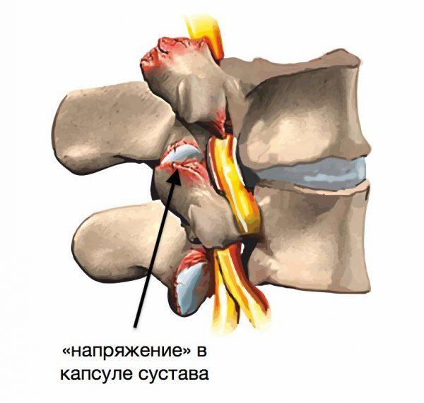 Спондилоартроз шейного отдела позвоночника: симптомы, лечение и пр при разных формах