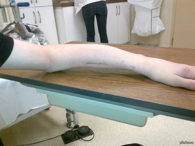 Зачем нужна лангетка на ногу при травме: разновидности, критерии выбора, противопоказания