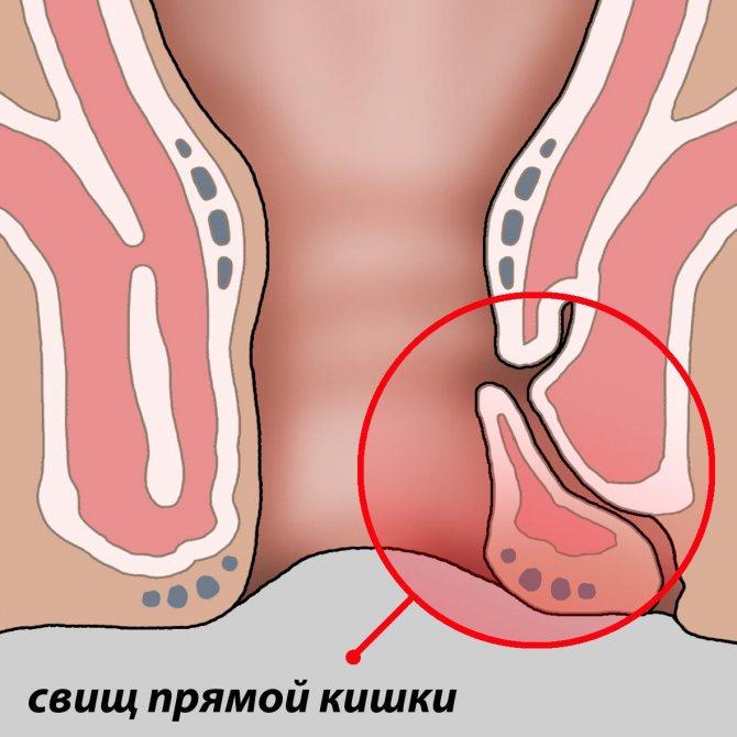 Хронический парапроктит (свищи прямой кишки): симптомы, виды, диагностика и лечение