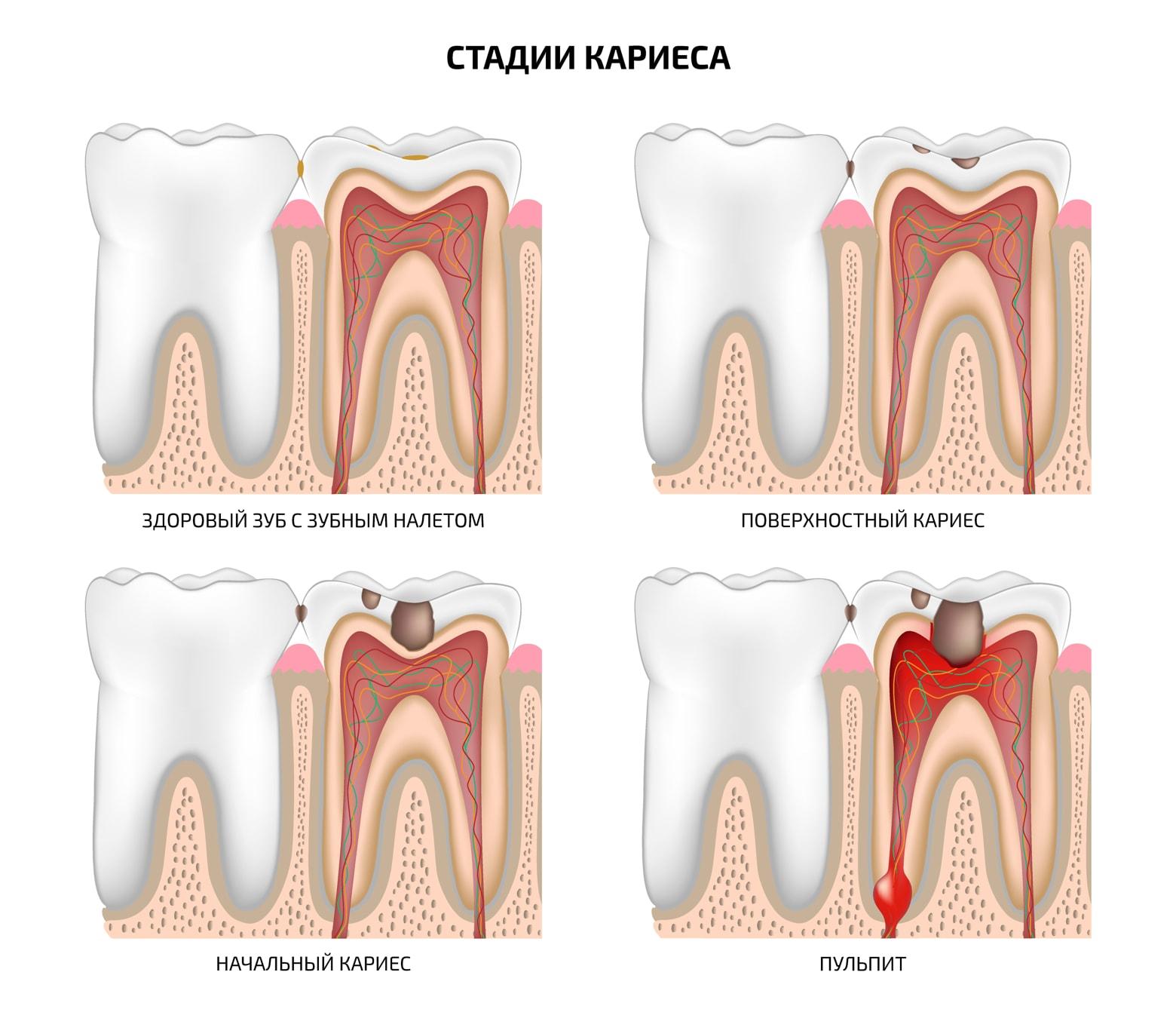 Пульпит зуба — что это такое и какие бывают разновидности этой болезни, фото различных этапов развития