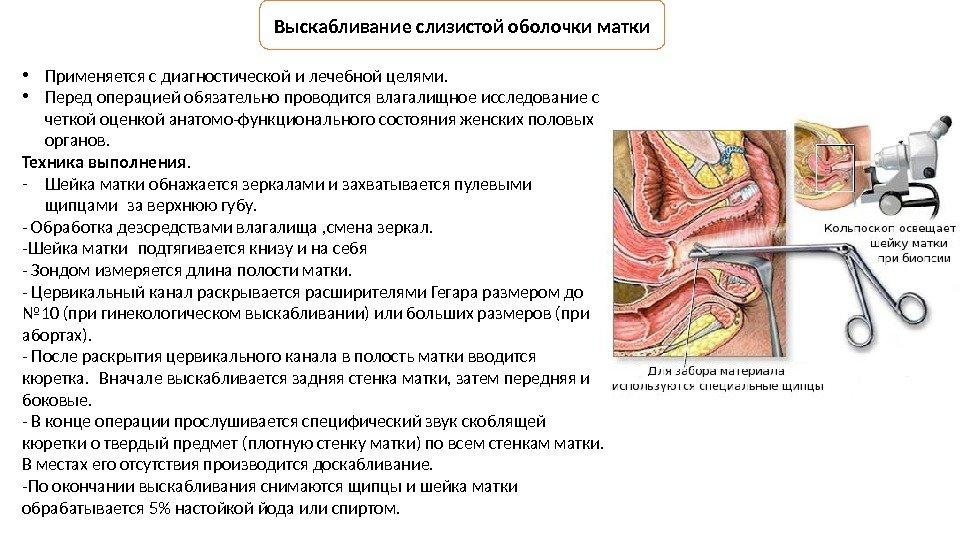 Гистероскопия: что это такое? описание и показания к проведению процедуры  :: syl.ru