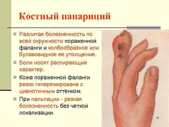 Панариций. причины, симптомы и лечение панариция в домашних условиях
