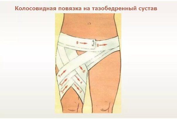 Бинтовые повязки. десмургия
