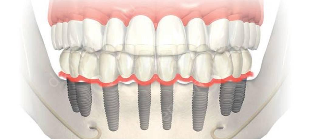 Базальная имплантация зубов - что это такое, цена, отзывы, плюсы и минусы