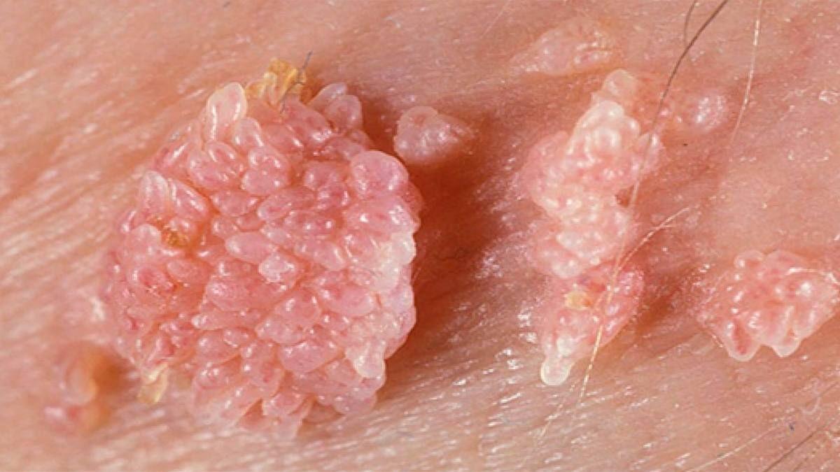 Остроконечные кондиломы - лечение, симптомы, фото у женщин и мужчин