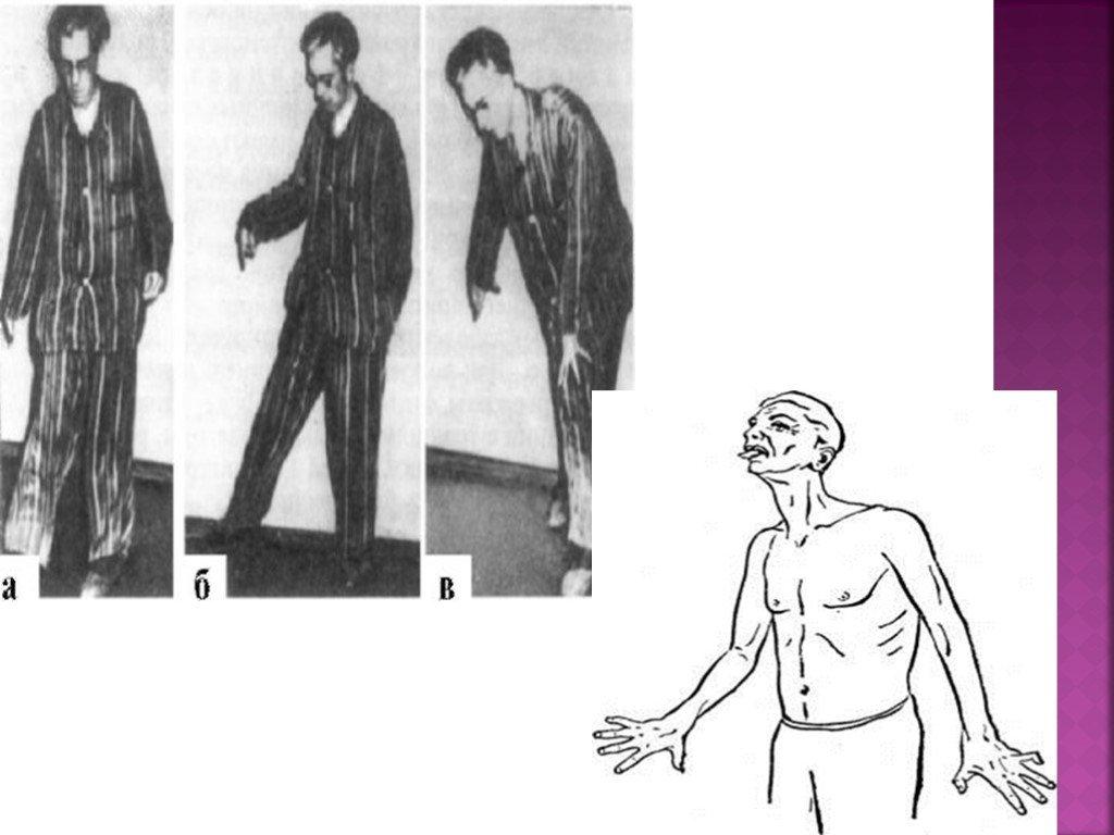 Болезнь гентингтона: симптомы, диагностика и методы лечения