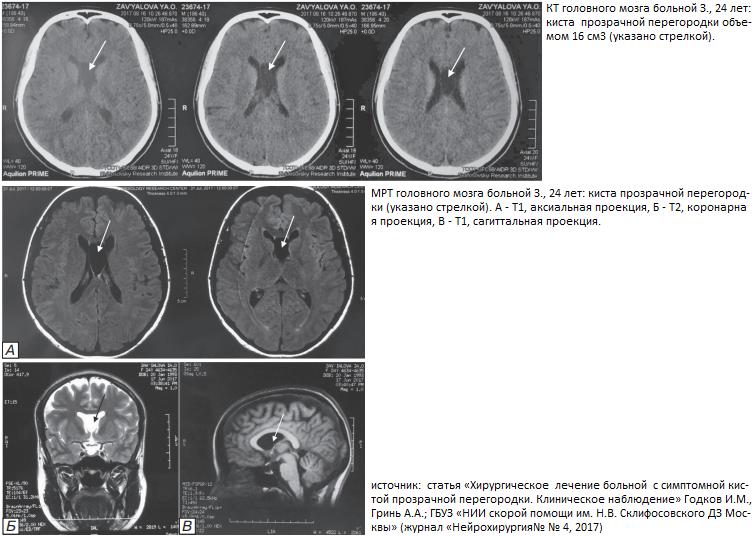 Киста головного мозга: что это, симптомы, лечение | здоровье вашей головы