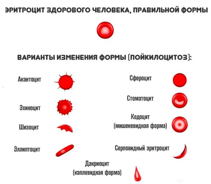 Пойкилоцитоз: классификация, причины, диагностика и лечение