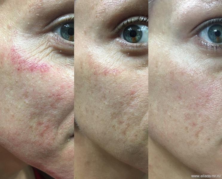 Микронидлинг кожи лица в салоне и домашних условиях