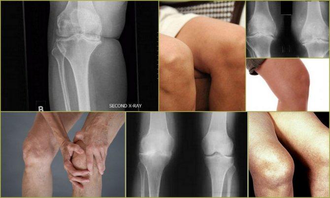 Гонартроз коленного сустава 1 степени: что это, симптомы, как лечить