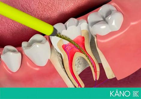 Что такое пульпа зуба – состав и строение пульпы зуба