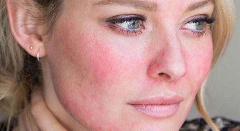Гиперемия кожных покровов - что это такое? причины гиперемии кожных покровов