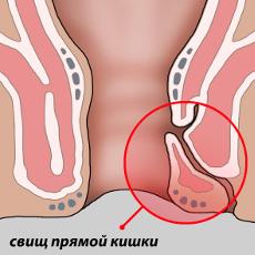Парапроктит: симптомы, фото, лечение. операция при парапроктите