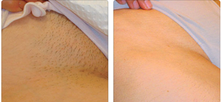 Элос-эпиляция: новейший метод удаления волос
