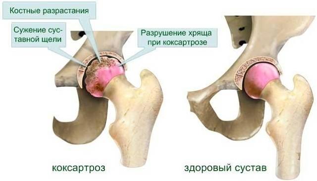 Коксартроз: разрушение тазобедренного сустава