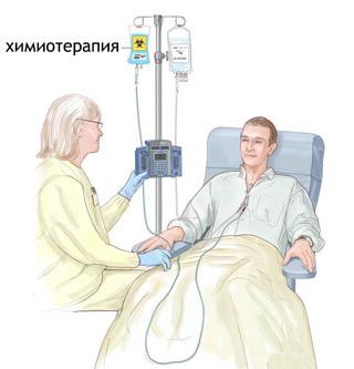 Химиотерапия при онкологии: что это такое и для чего она нужна?