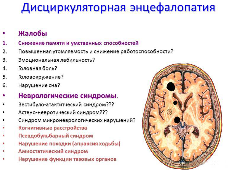10 факторов развития резидуальной энцефалопатии у детей