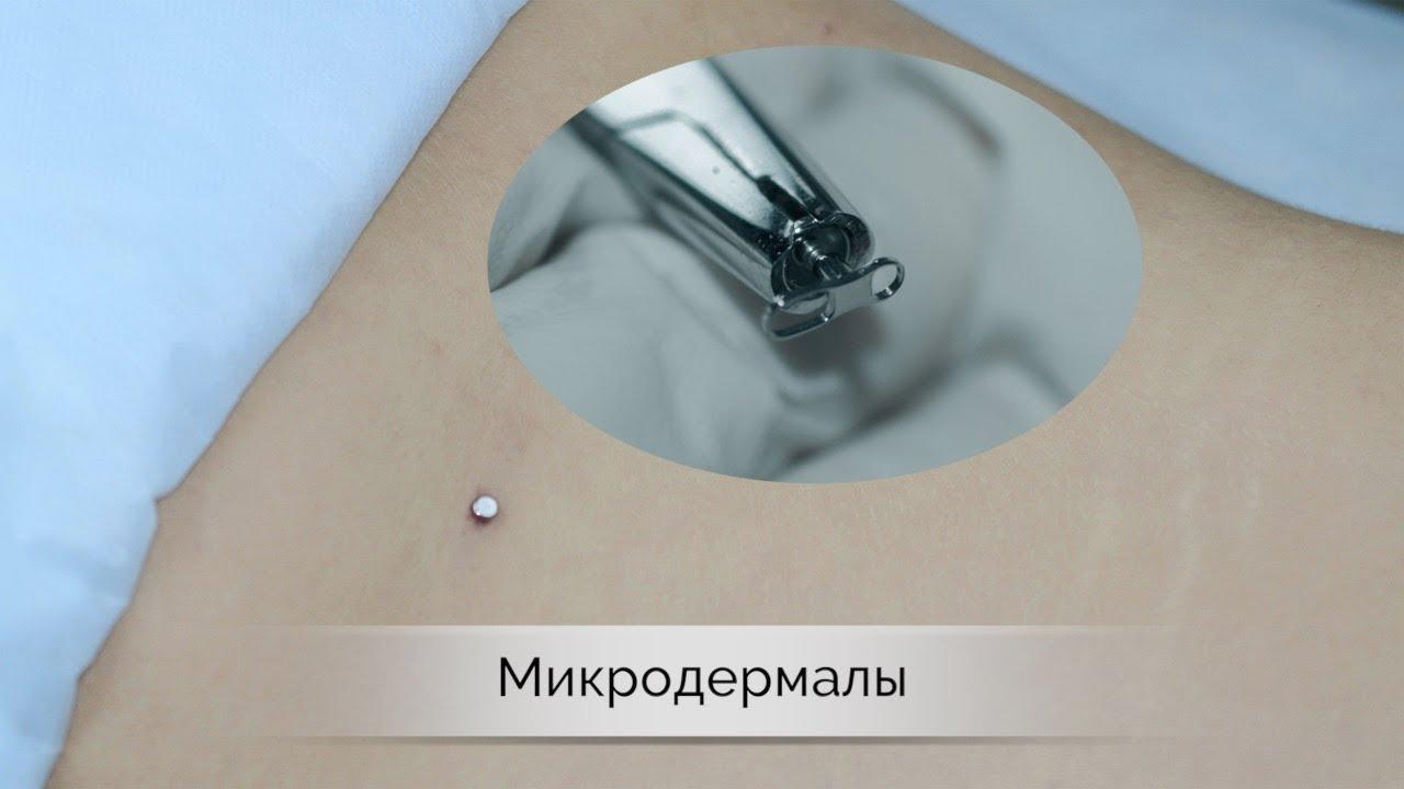 Микродермал - установка якоря для украшения: уход за кожей после прокола, возможные последствия, противопоказания и цена