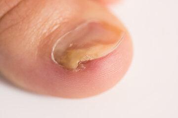 Микоз кожи: симптомы, диагностика и лечение | профилактика микоза кожи