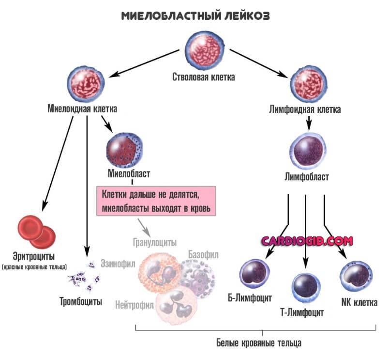 Факты о хроническом лимфоцитарном лейкозе: диагностика, способы лечения, перспективы