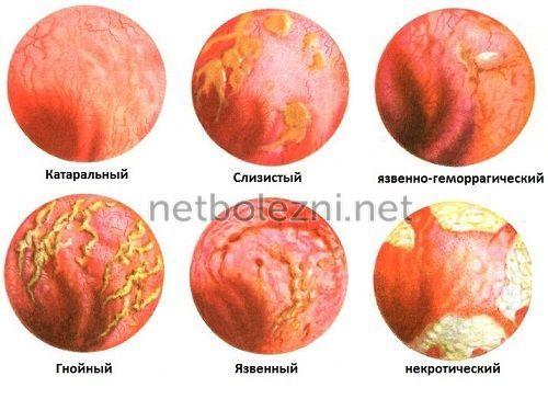 Проктит и парапроктит: симптомы и лечение, диета - babulya