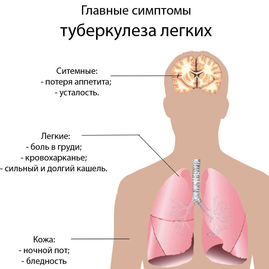 Туберкулез - что это такое