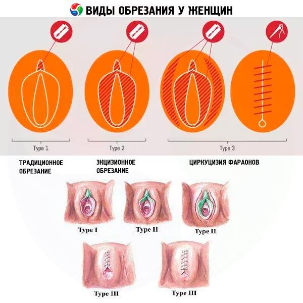 Как выглядит молочница у женщин на фотографиях: выделения на трусах и во влагалище