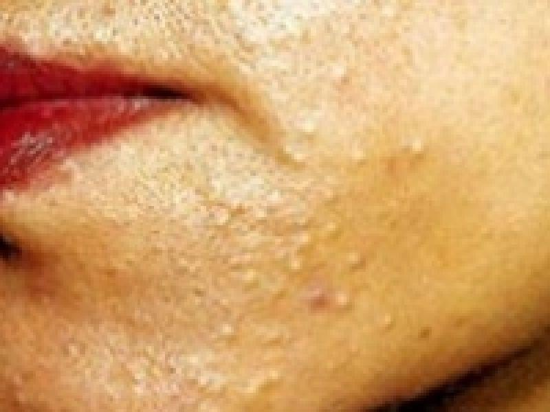 Клещ демодекс на лице: причины, симптомы и особенности лечения - druggist.ru