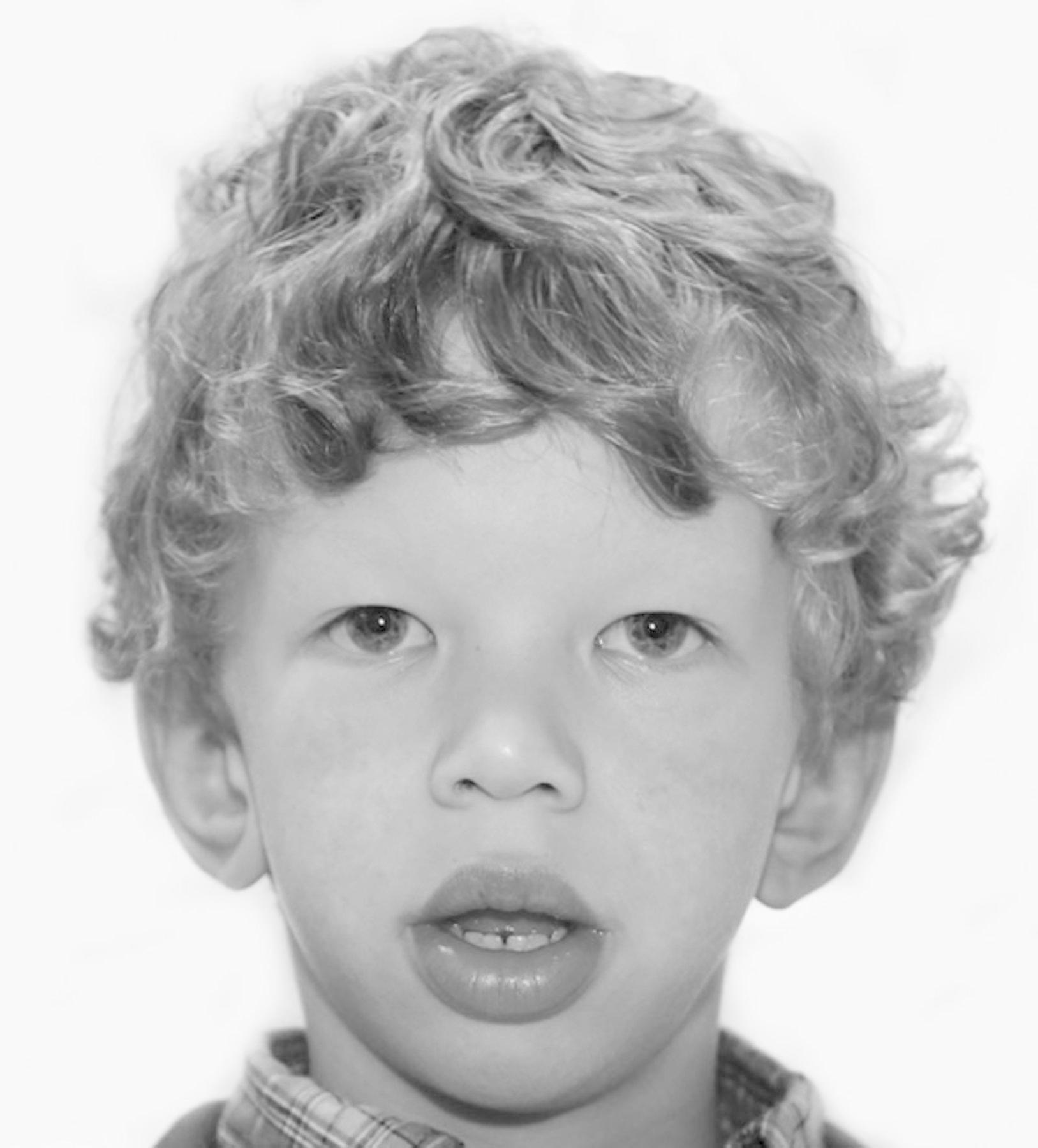Синдром вильямса – дети с эльфийскими лицами