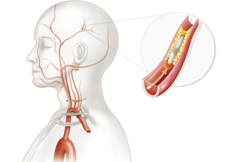 Что такое брахиоцефальные артерии, как проводится дуплексное сканирование бца?