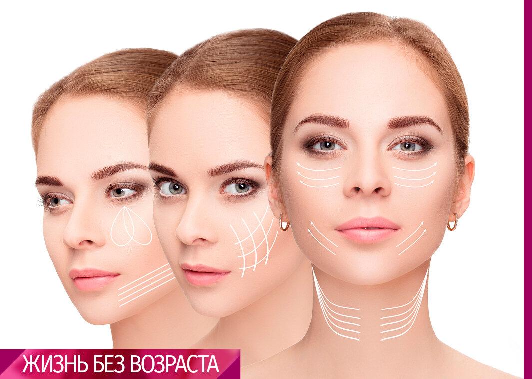Гравитационный птоз лица – старение кожи и тканей. как убрать птоз и восстановить овал лица?