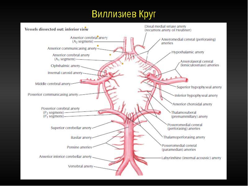 Варианты развития виллизиева круга: замкнутые и разомкнутые, в виде снижения или отсутствия кровотока и когда нужно лечение