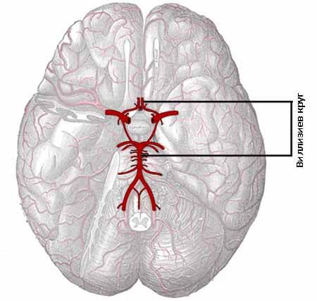 Вариант развития виллизиева круга: что это значит, симптомы и диагностика