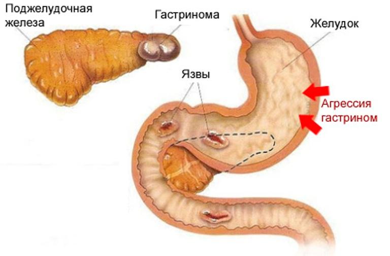 Синдром золлингера-эллисона - причины и признаки синдрома золлингера-эллисона
