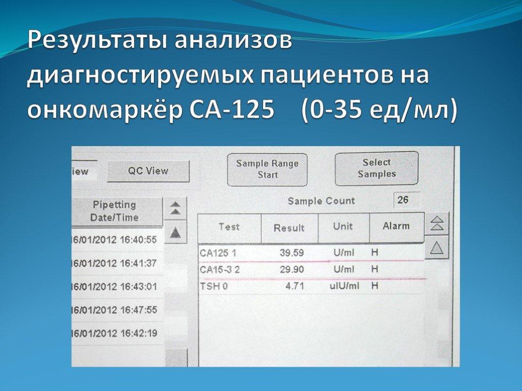 Анализ крови са 125: что означает, расшифровка, какая норма и как его сдавать