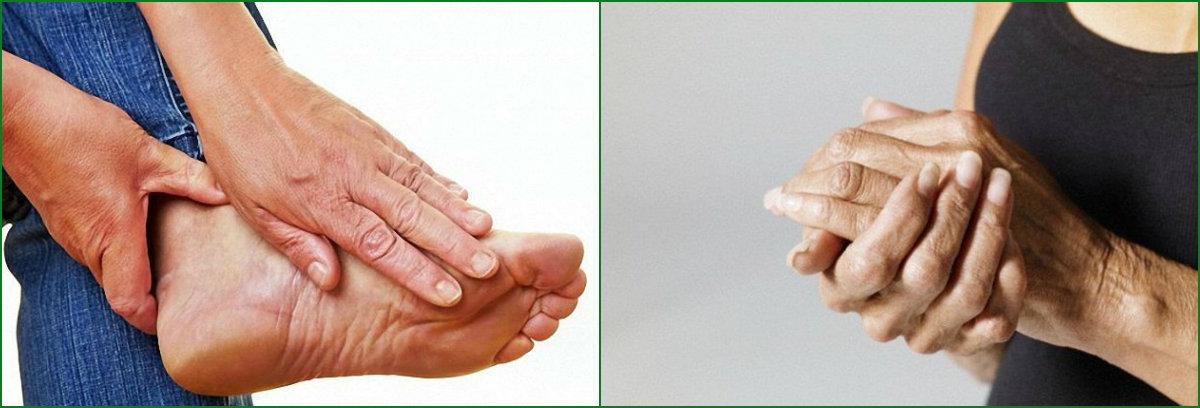 Полинейропатия: что это такое
