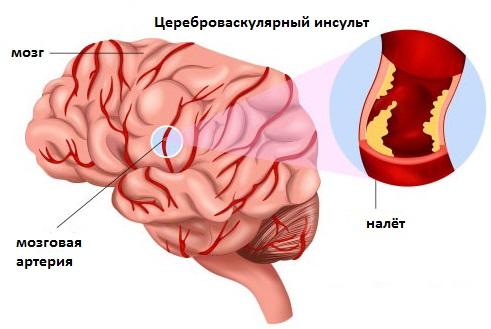 Цереброваскулярная болезнь (цвб): что это и как проводится лечение?