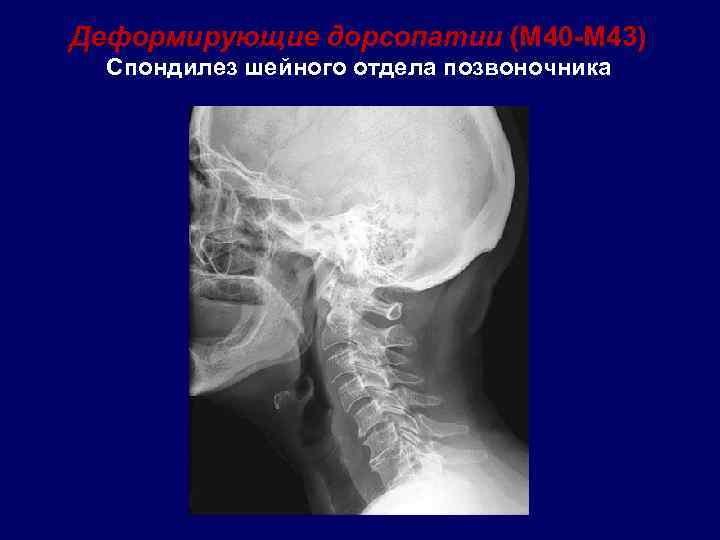 Что такое спондилоартроз шейного отдела позвоночника?