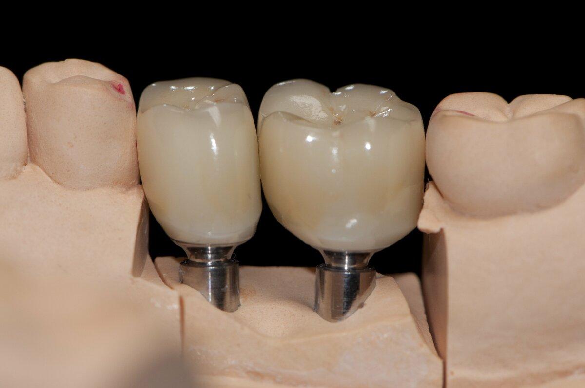 Что такое абатмент, как его применяют в стоматологии и его виды